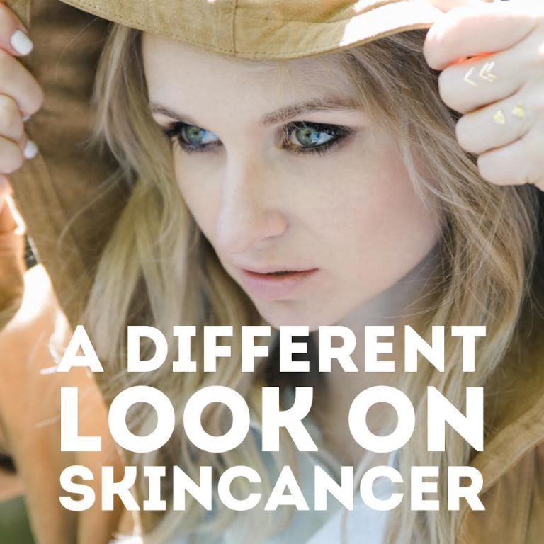 Another look on skin cancer 2